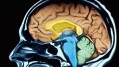 Image du cerveau humain