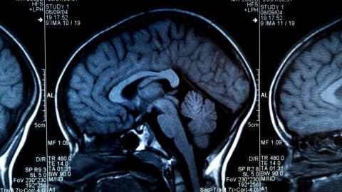 Un scan du cerveau