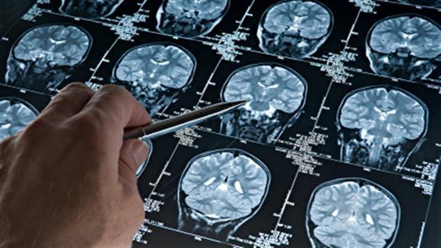 cerveau-scan-commotion