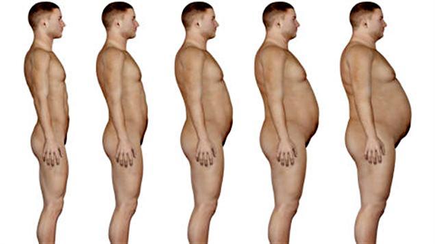 Selon un récent sondage Léger Marketing mené par CBC/Radio-Canada, l'obésité est la question de santé qui préoccupe le plus les Canadiens.