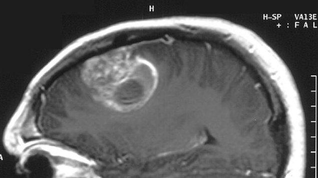IRM cérébrale montrant un glioblastome chez un enfant de 15 ans.