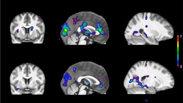 Le cerveau d'un fumeur