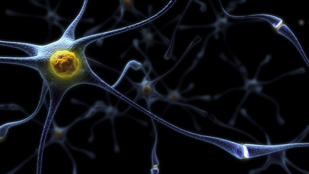 Reprsentation d&#39;un neurone. Dans l&#39;alzheimer, les plaques sniles compriment les neurones.