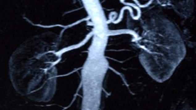 Radiographie des reins