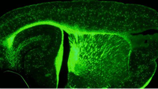 Cerveau de souris traitée par la testostérone pendant 6 semaines après une démyélinisation sévère. Une récupération importante est observée suite à ce traitement.