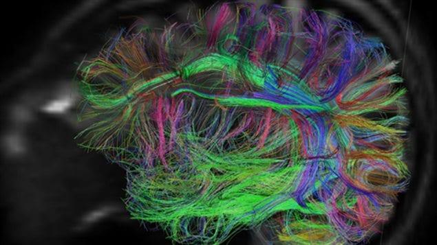 Le mouvement et le cerveau