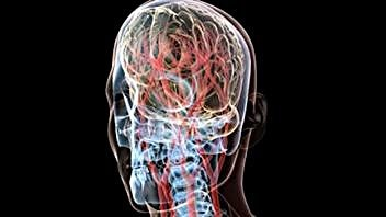 El tratamiento consiste en desbloquear las venas del cuello y del pecho para mejorar el flujo de sangre.