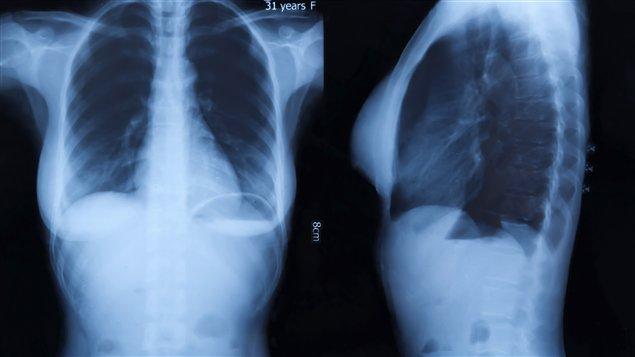 Des cas de tuberculose au Nunavik