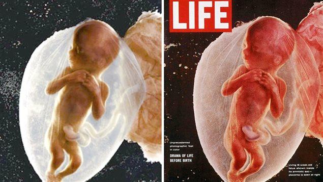 La célèbre photo d'un foetus humain