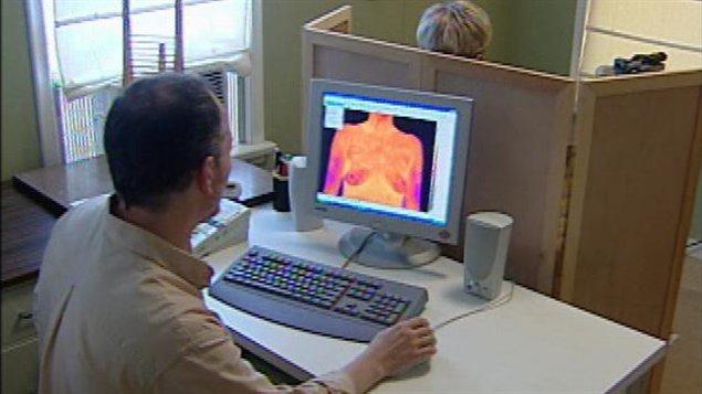 Un examen de thermographie du sein (archives)