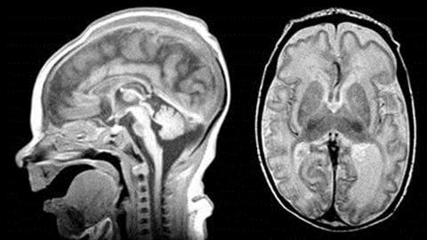 Ces images illustrent le cerveau d'un enfant