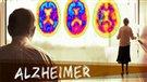 Un lien entre l'exposition au DDT et l'alzheimer? (2014-01-28)