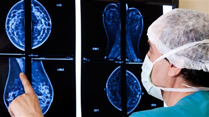 Mammographie : Tracadie-Sheila ne décolère pas - Radio-Canada