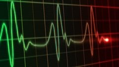 Un moniteur cardiaque