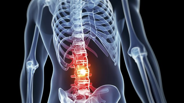 Un sondage d'Ostéoporose Canada révèle que les Canadiens ignorent les faits sur l'ostéoporose et sur ses conséquences sérieuses sur la santé