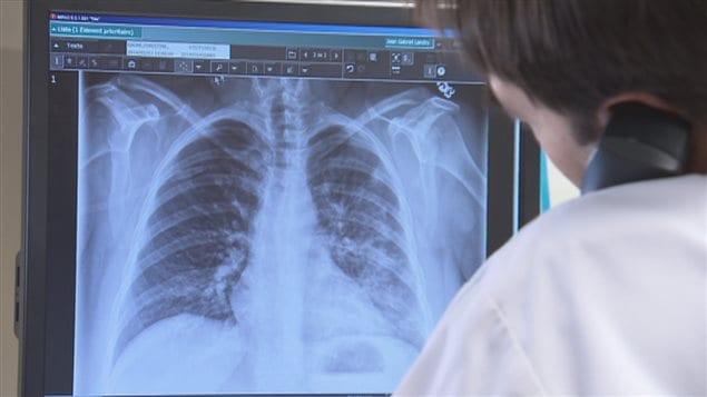 L'hypertension pulmonaire est une maladie mortelle et incurable