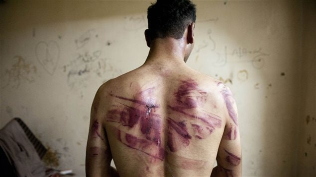 En 2012, un homme montre des marques de torture dans son dos après avoir été libéré des forces militaires syriennes.