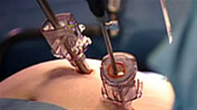 Une nouvelle technique de chirurgie bariatrique
