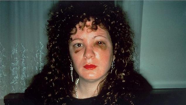 Autoportrait <i>Nan one month after being battered</i>, de Nan Goldin, réalisé en 1984.