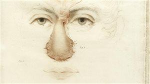 Détail d'une illustration montrant une opération pratiquée par Joseph Carpue