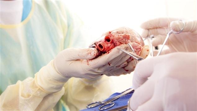 Une transplantation cardiaque
