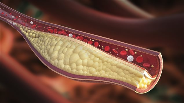 Le cholestérol peut boucher les artères