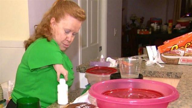 Marie Olney, victime de la thalidomide