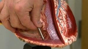 Le plus petit stimulateur cardiaque au monde. Il fait moins de 3 cm de long et est plus mince qu'un stylo bille