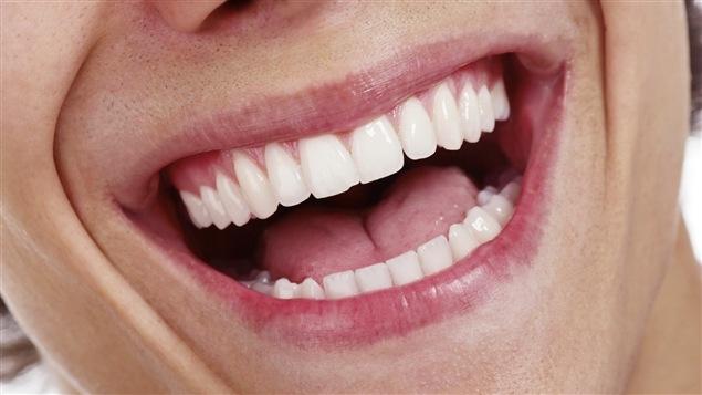 Quelqu'un rit à pleines dents.