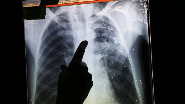 Une radiographie de poumons