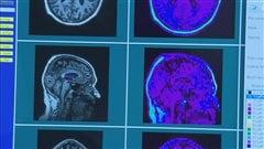 Un groupe de chercheurs tente de mieux comprendre les premières manifestations de la maladie d'Alzheimer.