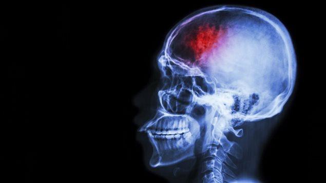 Image d'un cerveau atteint d'AVC