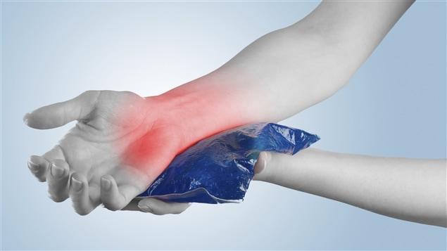 Modèle d'application de glace sur une articulation endolorie