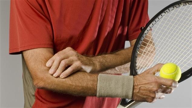 La plus connue des tendinites, l'épicondylite, le fameux <i>tennis elbow</i>
