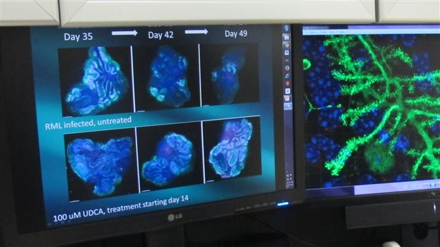 Canadian advance in solving brain disease