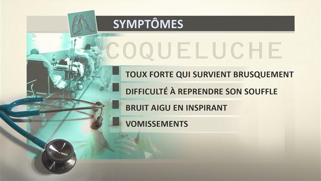 Les symptômes de la coqueluche.