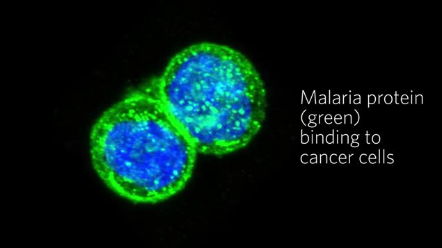 electron microscope image showing clearly how the malaria protein actively seeks out and binds to the cancer cells. When combined with the toxin, it becomes a targetted treatment leaving healthy cells unaffected while killing hte cancerous cells.