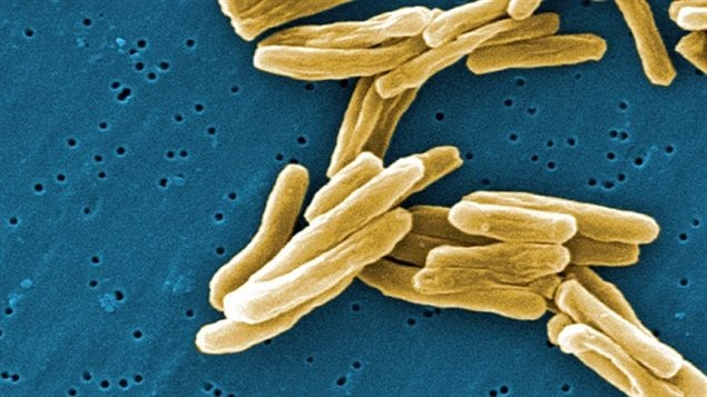 The Mycobacterium tuberculosis (TB) bacteria is shown in a high magnification scanning electron micrograph image. A newly published paper from McGill University concludes tuberculosis was introduced into Northern Quebec with the arrival of permanent trading posts.