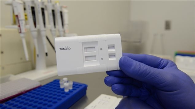 The new E. coli  0157 testing kit can dramatically cut the time to find out whether food has been contaminated with the bacteria.
