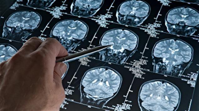 Selon les spécialistes, la commotion cérébrale entraine une crise énergétique dans le cerveau, ce qui l'empêche de fonctionner normalement. Pour avoir plus d'énergie et retrouver son équilibre, il faut un grand apport en oxygène et en glucose. Pour cela, le cerveau doit se reposer, car un retour précoce à l'apprentissage, au travail ou au jeu peut prolonger la période de récupération et multiplier les risques de subir un autre traumatisme.