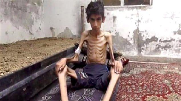 Cette photo non datée diffusée par le Conseil révolutionnaire local de Madaya montre un garçon amaigri jusqu'aux os. Associated Press affirme avoir vérifié l'authenticité de cette photo.