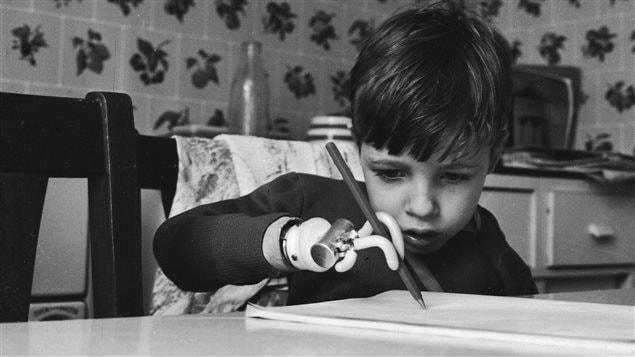 En 1964, Brett Nielsen un enfant né sans bras en raison de la thalidomide tente d'écrire avec une prothèse.