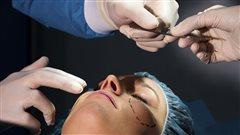 Une femme subit une chirurgie plastique au visage