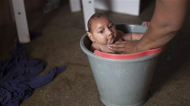 Bébé brésilien atteint de microcéphalie, né d'une mère infectée par le virus ZikaBébé brésilien atteint de microcéphalie, né d'une mère infectée par le virus Zika Photo : PC/AP/Felipe Dana