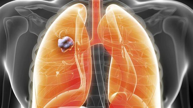 Le cancer du poumon est le cancer le plus fréquent en Alberta