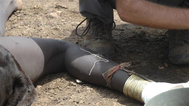 Un ver de Guinée émerge du mollet d'une jeune Soudanaise, à Djoubaen 2007.