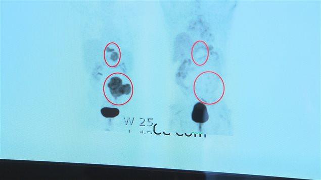 Virothérapie : le cancer de ce patient a disparu
