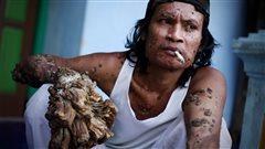 Dede Koswara, surnommé l'homme-arbre, dans son village de Bandung, à Java, en Indonésie, le 16 décembre 2009. Il souffre d'une forme du virus du papillome humain (PVH).