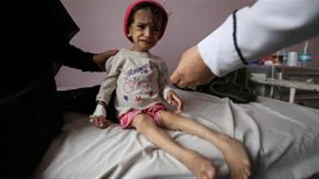 L'UNICEF estime que près de 10 000 enfants âgés de moins de 5 ans sont décédés de maladies évitables au cours de la dernière année. Parmi les raisons de ces décès : le déclin des campagnes de vaccination et des traitements contre la diarrhée et la pneumonie entre autres. Cela s'ajoute aux 40 000 enfants âgés de moins de cinq ans qui décédaient chaque année dans ce pays avant le déclenchement du conflit.