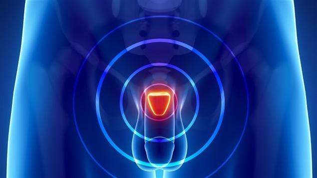 Illustration montrant l'emplacement de la prostate dans le corps humain